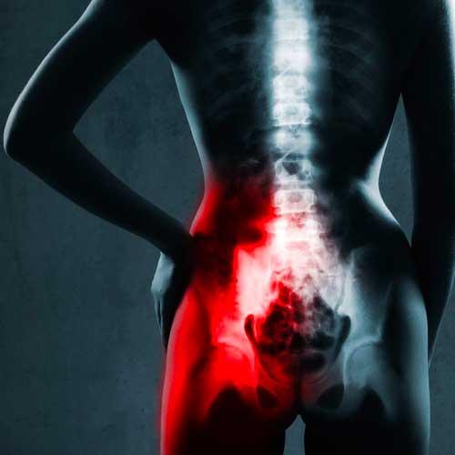 sacroiliac joint care scan