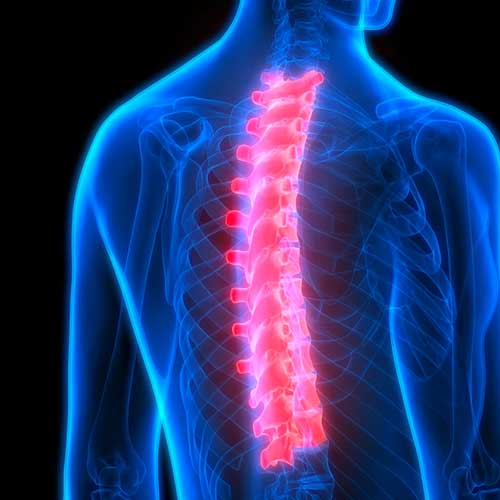 spinal surgery scan