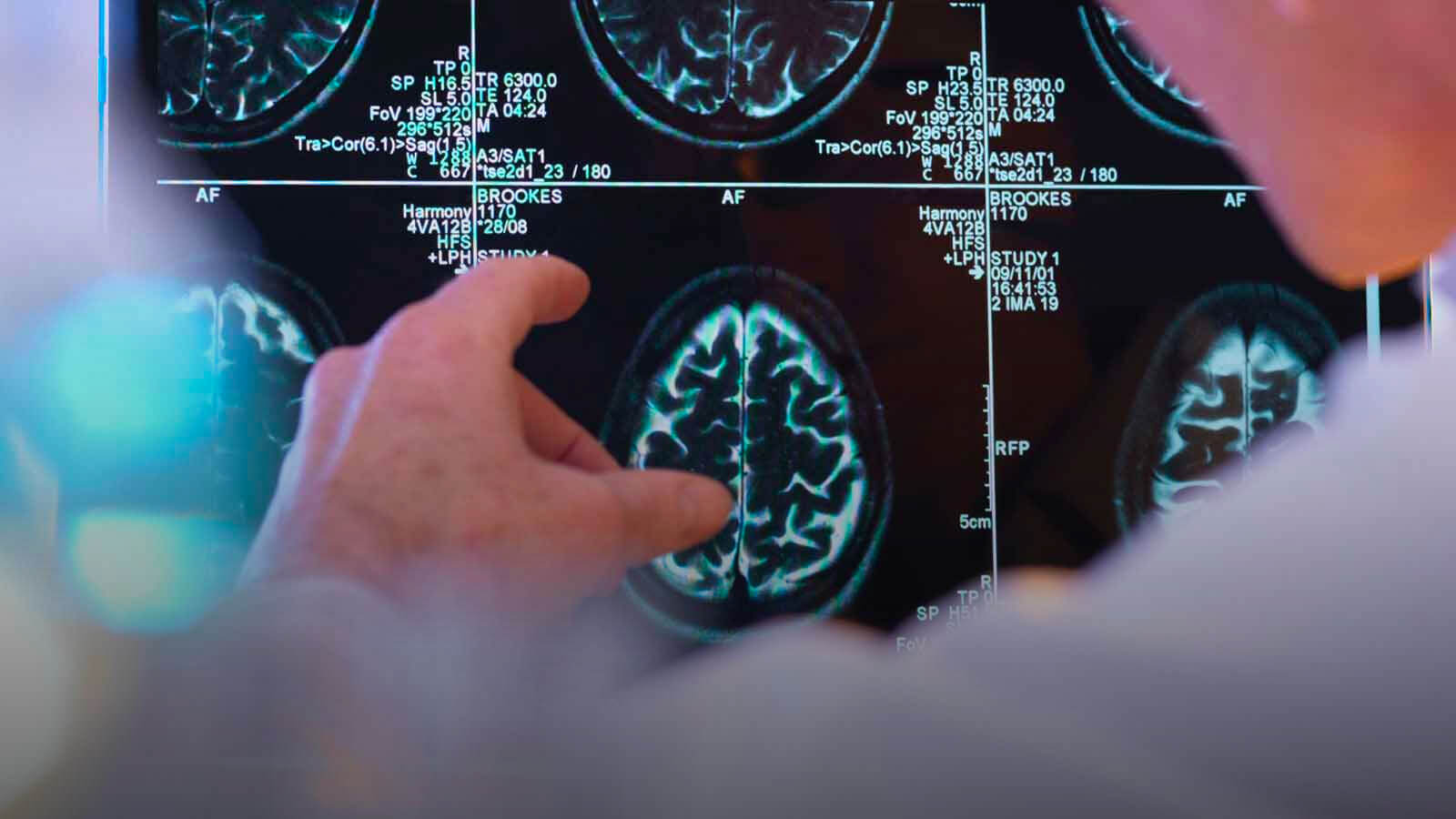 neurosurgery xray